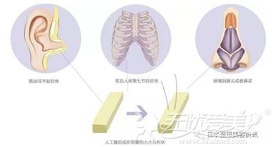 自体软骨隆鼻的方法分类