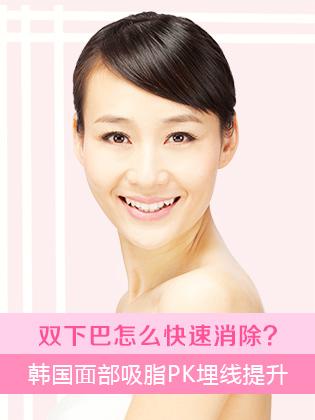 在韩国面部吸脂和埋线提升都能改善显胖的双下巴