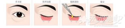 外切口去眼袋手术过程