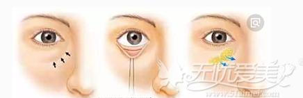 内切口去眼袋手术过程