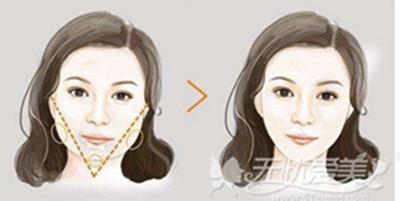 下颌角手术效果