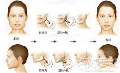 下颌角手术流程