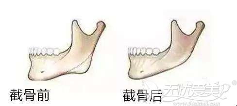 削骨手术的口内切口位置