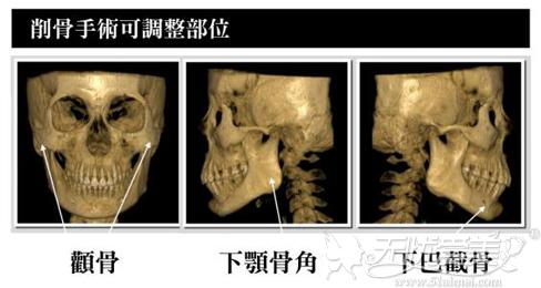 削骨手术常见削除部位