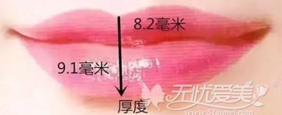 嘴唇上唇不超过8厘米下唇不超过9厘米