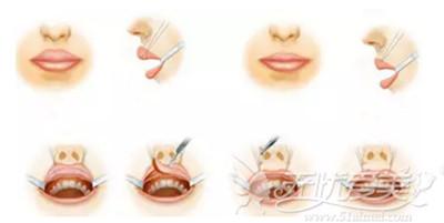 厚唇改薄手术的操作流程