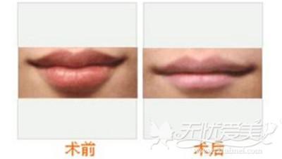 嘴唇改薄手术效果