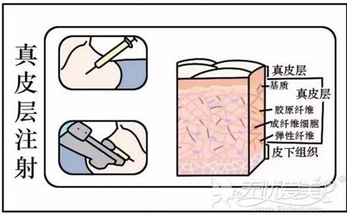 嗨体去颈纹的治疗原理