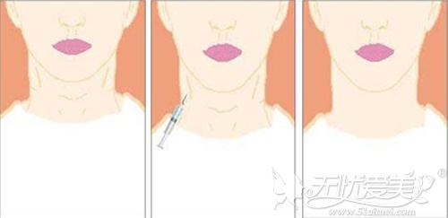 肉毒素也能有效的去颈纹
