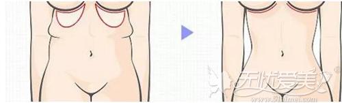 腹壁提升整形术前后效果