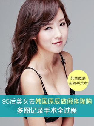 在韩国原辰做了假体隆胸手术后100天终于实现了我的模特梦