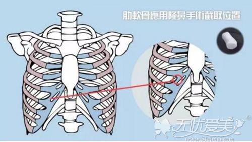 对于鼻部的整形状态来说肋软骨的效果较好