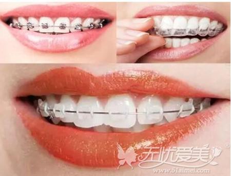 隐形矫正和固定矫正牙齿