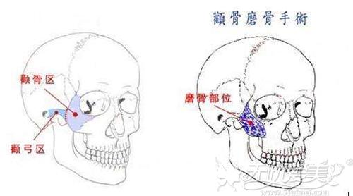 颧骨和颧弓在面部的位置