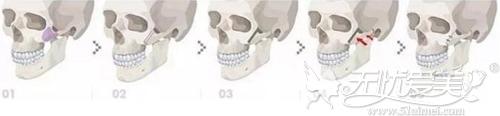 颧骨颧弓降低术过程