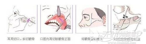 颧弓内推手术过程