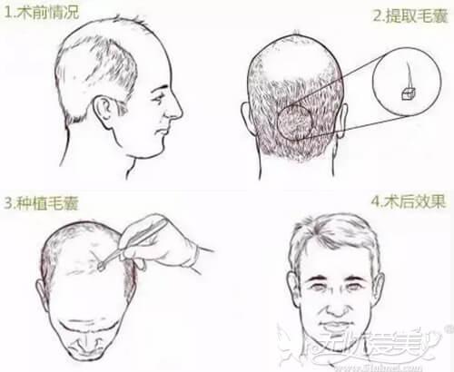 毛发种植过程原理