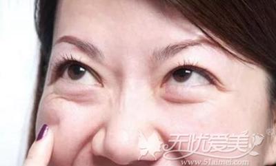 什么是假性眼袋