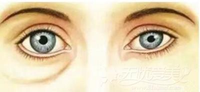 纯脂肪眼袋有何表现