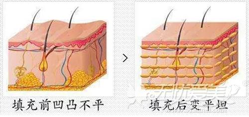 注射玻尿酸填充面部凹陷