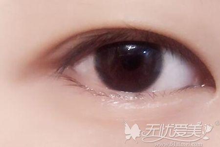 内双眼睛的形态