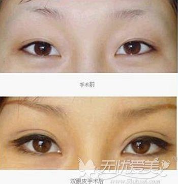 内双眼睛眼做双眼皮术后效果