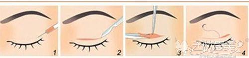 内双眼睛做全切双眼皮手术效果好