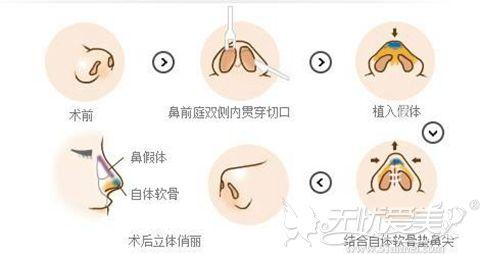 假体隆鼻过程