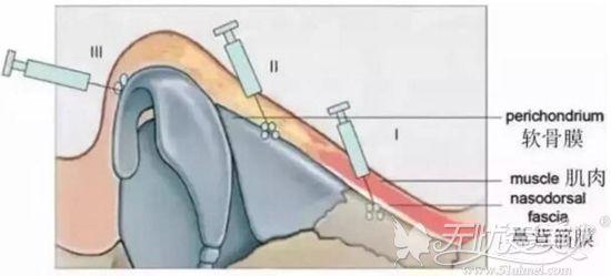 注射隆鼻中玻尿酸注射的位置