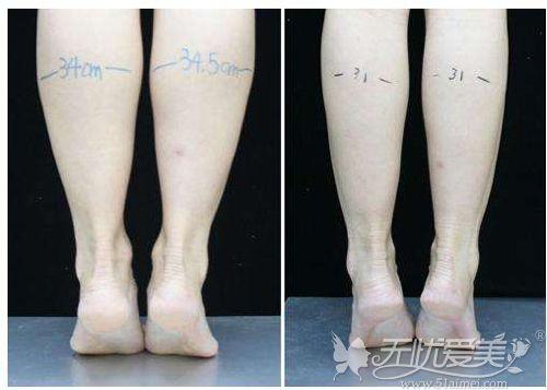 大瘦腿针之后的前后对比