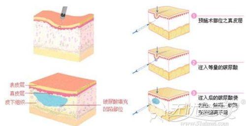 玻尿酸填充鼻基底