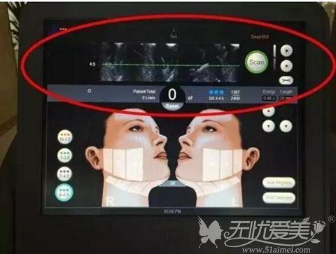 超声刀影像显示