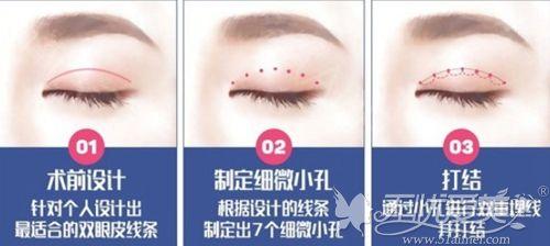 韩国Seven-Lock双眼皮手术方法