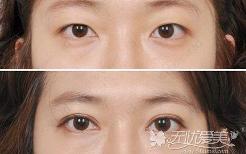 韩国Seven-Lock双眼皮手术案例