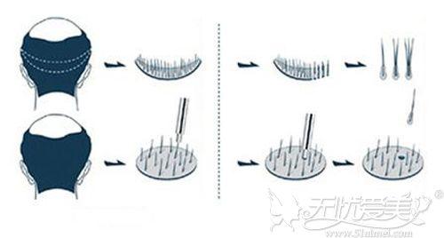 自体毛发移植的原理