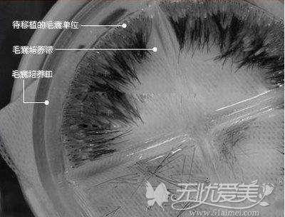 待移植的毛发放在培养器皿中