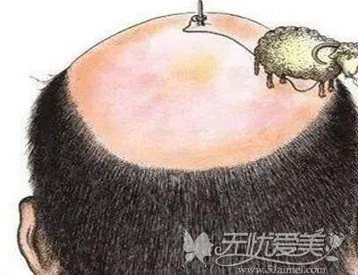 秃顶脱发已经成为很多人的现象
