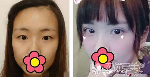 赤峰夏天双眼皮对比案例