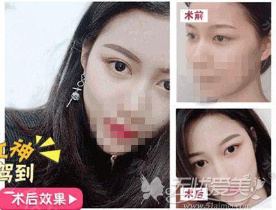 海口鹏爱宋路专家双眼皮手术案例