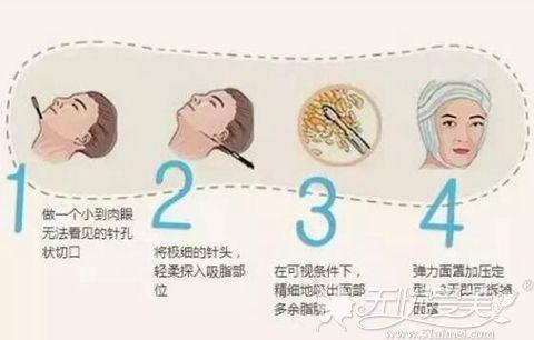 面部吸脂手术过程