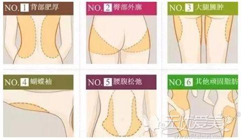 常见的吸脂部位