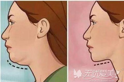 下颌缘吸脂