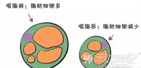 吸脂前后细胞图解
