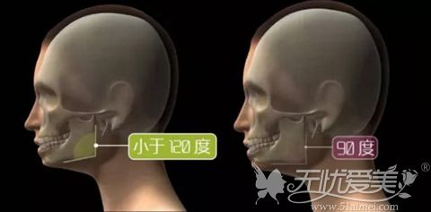 下颌角的宽度
