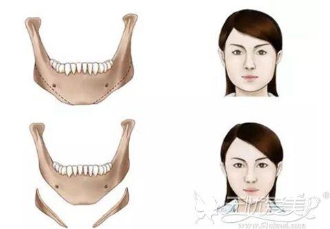 下颌角切除效果图