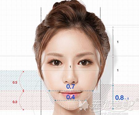 韩国MVT下颌角缩小术面部美学比例