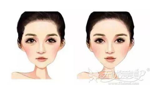 颧骨高度影响面部轮廓