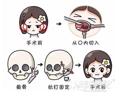 颧骨内推术手术过程