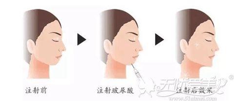 玻尿酸垫下巴过程图