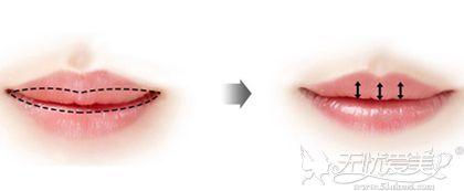 厚唇改薄的手术
